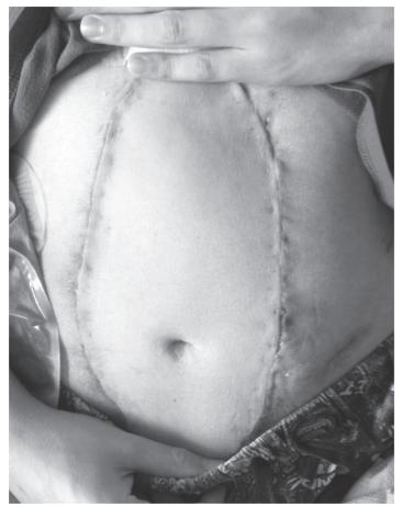 Результат трансплантации передней брюшной стенки. Полная трансплантация передней брюшной стенки.