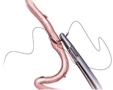 Сосудистые осложнения после трансплантации печени.