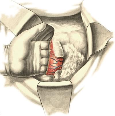 Панкреатодуоденальная резекция. Мобилизация двенадцатиперстной кишки по Кохеру. Тупое отделение задней стенки кишки и головки поджелудочной железы от подлежащих тканей.