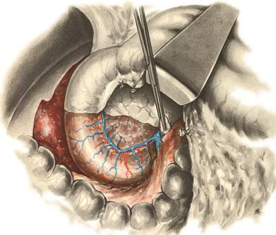 Панкреатодуоденальная резекция. Отслоение корня брыжейки поперечной ободочной кишки и париетальной брюшины от головки поджелудочный железы и нижней горизонтальной части двенадцатиперстной кишки.