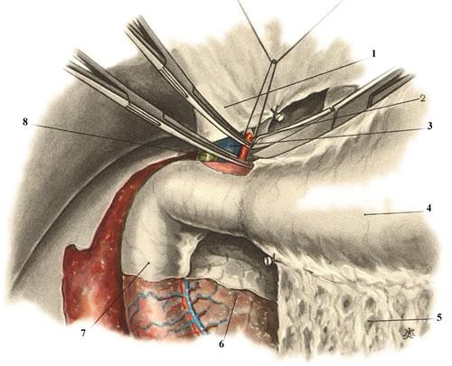 Панкреатодуоденальная резекция. Малый сальник рассечен. Перевязка и пересечение a. gastroduodenalis. 1 — lig. hepatoduodenale; 2 — a. gastroduodenalis; 3 — v. portae; 4 — ventriculus; 5 — lig. gastrocolicum; 6 — caput pancreatis; 7 — duodenum; 8 — duct us choledochus.