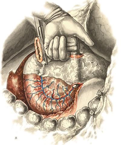 Панкреатодуоденальная резекция. Желудок отсечен и отведен влево, культя двенадцатиперстной кишки — вправо. Отделение шейки железы от подлежащей воротной и верхней брыжеечной вен.