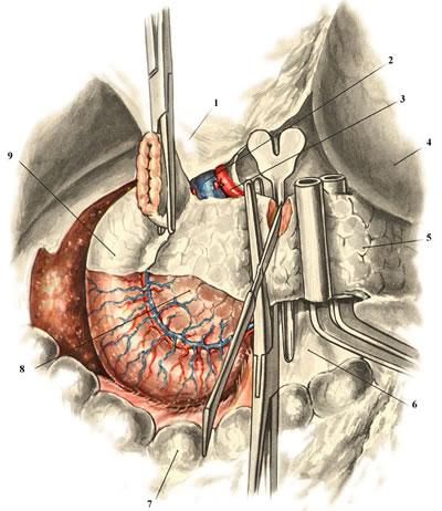 Панкреатодуоденальная резекция. Пересечение железы по желобоватому зонду. 1 — lig. hepatoduodenale; 2 — v. portae; 3 — a. hepatica communis; 4 — ventriculus; 5 — corpus pancreatis; 6 — mesocolon transversum; 7 — colon transversum; 8 — caput pancreatis; 9 — duodenum.