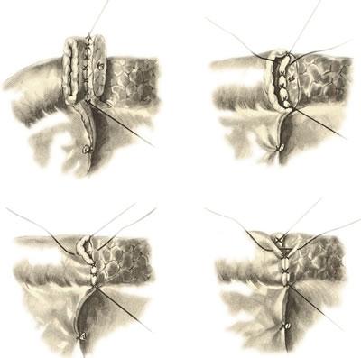 Панкреатодуоденальная резекция. Способ наложения анастомоза между культей железы и тонкой кишкой по типу конец в конец.