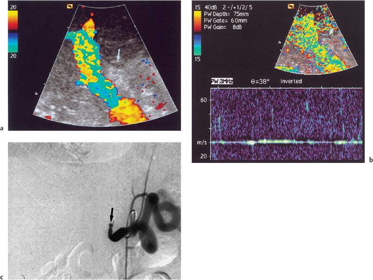 Сосудистые осложнения после трансплантации печени. При ангиографии выявлена окклюзия печеночной артерии трансплантата печени.