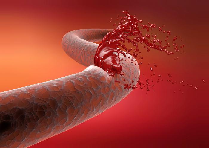 разрыв артерии трансплантата печени