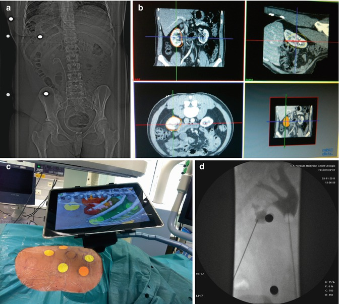 Чрескожная нефролитотрипсия при помощи маркерной навигации и iPad.