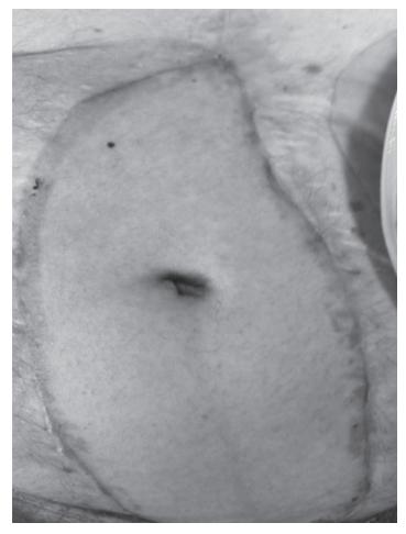 Отторжение трансплантата передней брюшной стенки (папуллёзная сыпь). Параллельно последовало отторжение трансплантированной кишки.