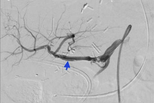 Сосудистые осложнения после трансплантации печени. На снимке стрелкой указан стент, установленный в артерию трансплантата печени.