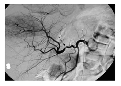 Сосудистые осложнения после трансплантации печени. Ангиография. Стрелкой показано месту сужения печеночной артерии трансплантата