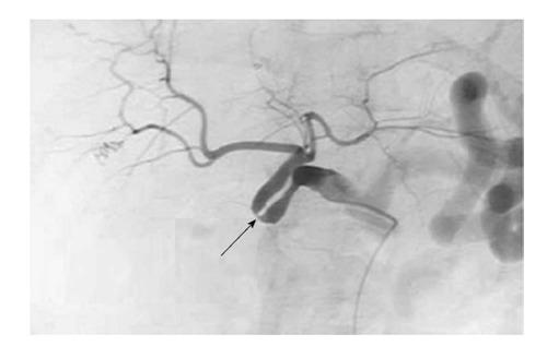 Сосудистые осложнения после трансплантации печени. Стеноз артерии, связанный с перегибом артерии трансплантата.