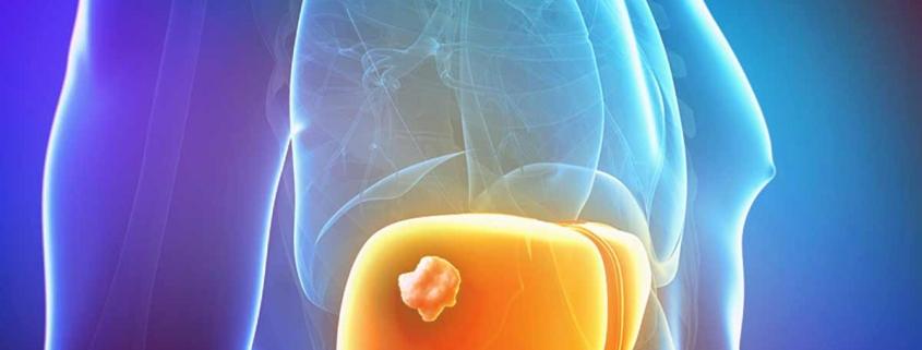 Рецидив рака печени не связан с лечением гепатита C