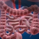 трансплантация кишечника