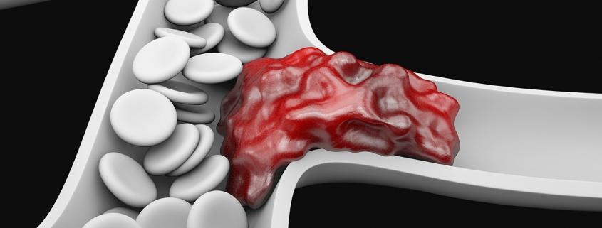 Ривароксабан (Ксарелто) показан к приёму у пациентов с риском развития тромбоэмболических осложнений.